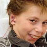 Phi thường - kỳ quặc - Ghép tai làm từ sụn người cho cậu bé 9 tuổi