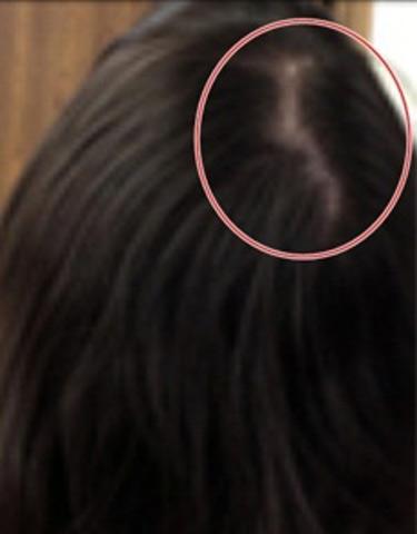 Nguy cơ tiềm ẩn từ tóc giả trôi nổi - 4