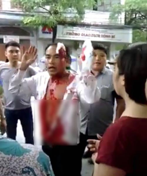 Người đàn ông bê bết máu đứng chặn đầu xe khách - 1