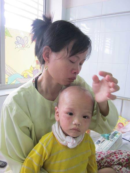Bé 18 tháng lở loét khắp người vì bệnh nan y - 6