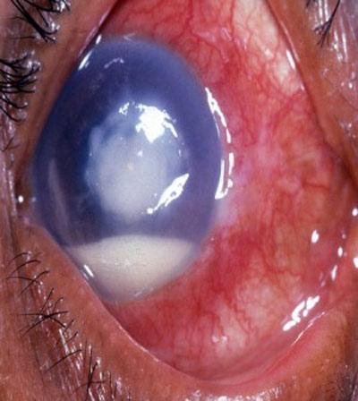 Thiếu nữ mang sẹo trong mắt vì kính áp tròng
