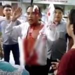 An ninh Xã hội - Người đàn ông bê bết máu đứng chặn đầu xe khách