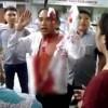 Người đàn ông bê bết máu đứng chặn đầu xe khách