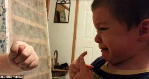 """Cậu bé khóc nức nở vì tưởng bố """"vặt"""" mất mũi - 2"""