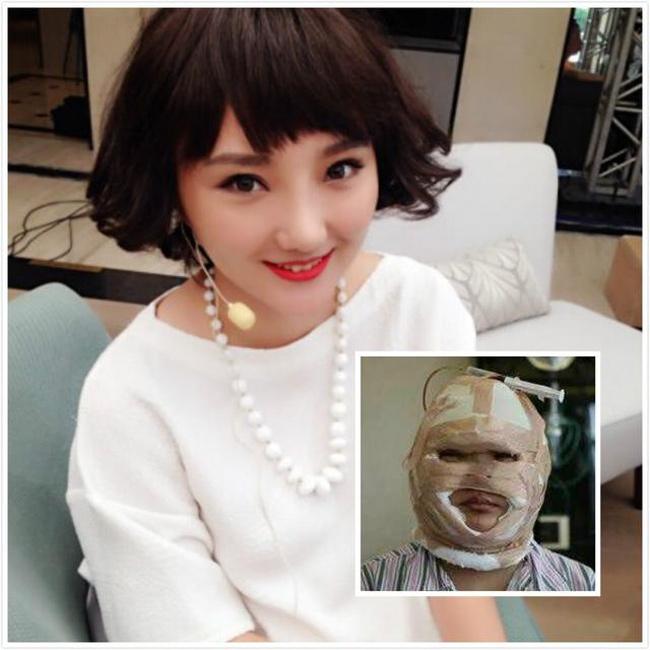 Nữ ca sỹ Vương Tử - cựu thí sinh Super Girls - thay đổi chóng mặt sau khi phẫu thuật tốn hơn 2 tỷ đồng.