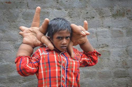 Xót xa cậu bé có đôi bàn tay khổng lồ - 1