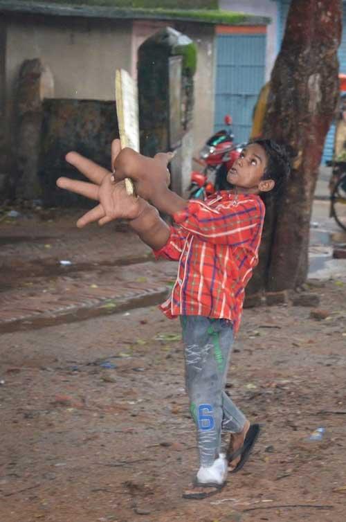 Xót xa cậu bé có đôi bàn tay khổng lồ - 3
