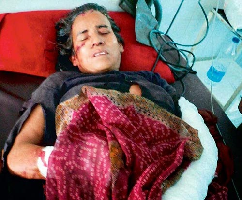 Ấn Độ: Lão bà phản công đánh chết báo hoang - 1