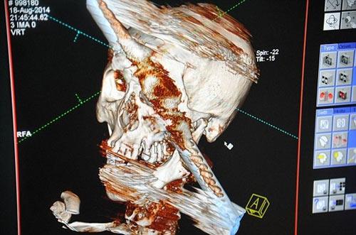 Bị thanh sắt xuyên từ trán xuống hàm vẫn sống sót kỳ diệu - 1