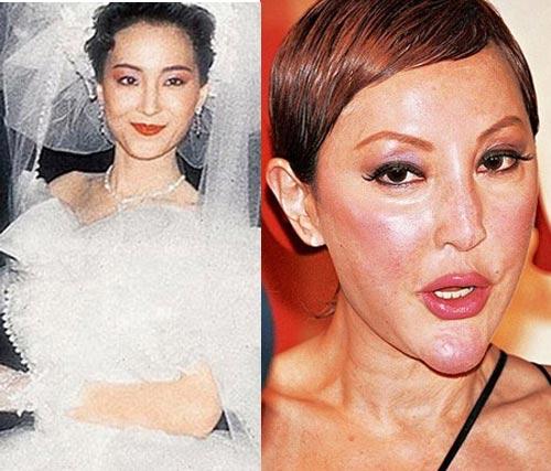 """Người đẹp Hoa ngữ phá tan khuôn mặt bằng """"dao kéo"""" - 1"""