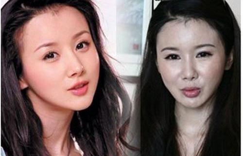 """Người đẹp Hoa ngữ phá tan khuôn mặt bằng """"dao kéo"""" - 7"""