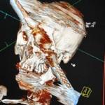 Sức khỏe đời sống - Bị thanh sắt xuyên từ trán xuống hàm vẫn sống sót kỳ diệu
