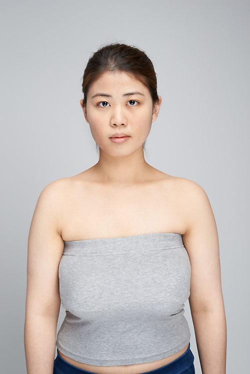 Nữ sinh đổi đời nhờ phẫu thuật rút ngắn ngực dài - 1