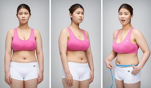 Nữ sinh đổi đời nhờ phẫu thuật rút ngắn ngực dài - 2