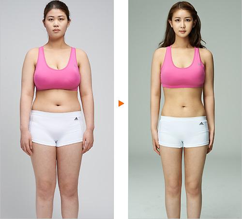Nữ sinh đổi đời nhờ rút ngắn ngực dài 23cm - 4