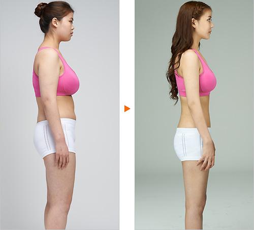 Nữ sinh đổi đời nhờ phẫu thuật rút ngắn ngực dài - 5