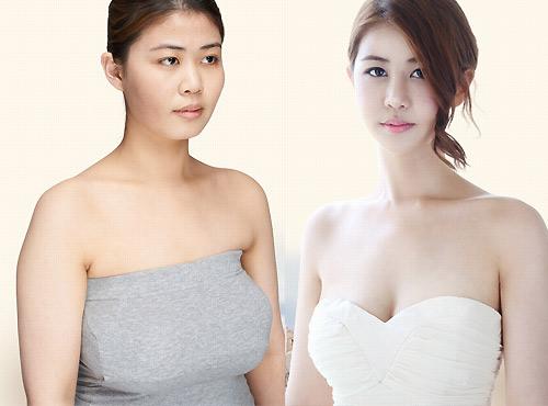 Nữ sinh đổi đời nhờ phẫu thuật rút ngắn ngực dài - 3