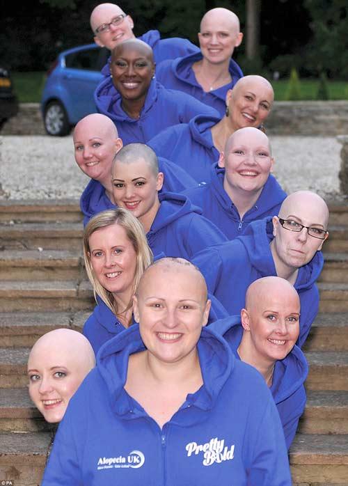 12 quý cô đầu trọc, khỏa thân gây quỹ - 3