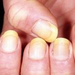 Sức khỏe đời sống - Móng tay hơi ngả vàng: Bệnh gì?