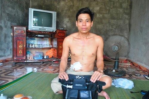 Người duy nhất ở Việt Nam sống nhờ sạc điện vào tim - 1
