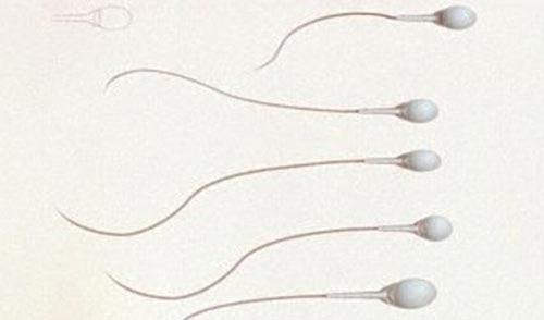 Thuốc tiêm ngừa thai mới dành cho đàn ông - 1