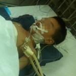 Ngã lan can, bé trai 6 tuổi nguy kịch do vỡ lá lách