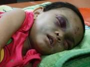 Tin tức trong ngày - Bé gái 4 tuổi bị đánh dã man: Hàng xóm từng quỳ gối xin tha