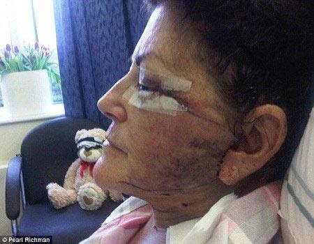 Hoại tử gương mặt sau ca phẫu thuật thẩm mỹ - 2