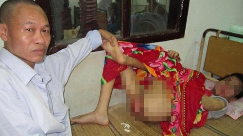 Bé trai khuyết tật bị hành hạ dã man trong khách sạn - 1