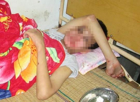 Bé trai khuyết tật bị hành hạ dã man trong khách sạn - 2