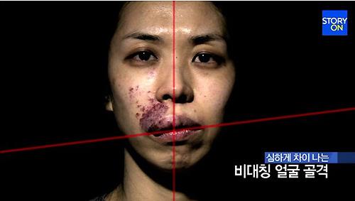 """Màn lột xác ấn tượng của cô gái có """"gương mặt quỷ"""" - 1"""
