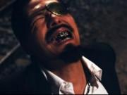 Phim - Bình Minh đen, gầy, xấu trong Hiệp sĩ mù