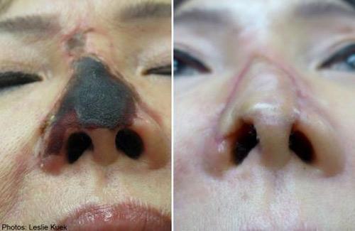 Bị hoại tử mũi sau khi tiêm chất làm đầy - 1