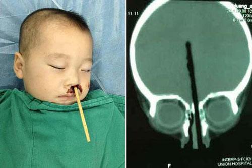 TQ: Bé trai 2 tuổi bị đũa chọc từ mũi lên não - 1