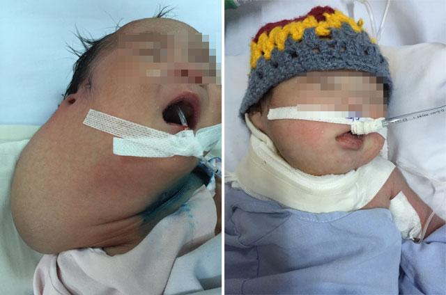 Phẫu thuật lấy khối u khổng lồ trên cổ trẻ sơ sinh - 1