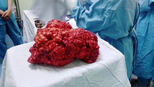 Bóc tách khối bướu 4,3 kg trong bụng bé 11 tuổi - 1