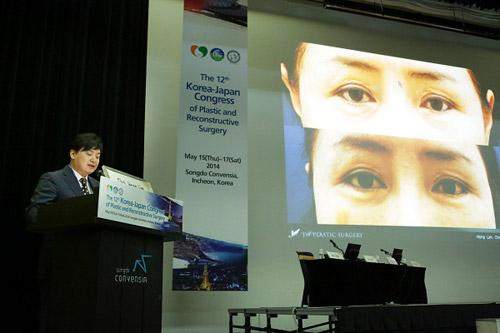 Thẩm mỹ mắt đẹp tự nhiên theo đúng chuẩn Hàn Quốc - 2