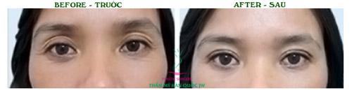 Thẩm mỹ mắt đẹp tự nhiên theo đúng chuẩn Hàn Quốc - 4