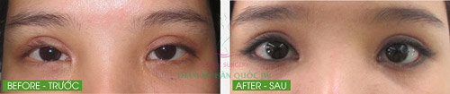 Thẩm mỹ mắt đẹp tự nhiên theo đúng chuẩn Hàn Quốc - 5