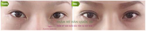 Thẩm mỹ mắt đẹp tự nhiên theo đúng chuẩn Hàn Quốc - 6
