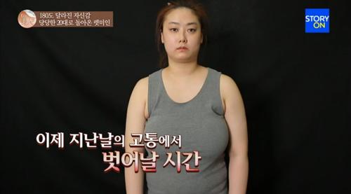 Cô gái Hàn hóa mỹ nhân sau khi giảm kích cỡ vòng 1 - 1