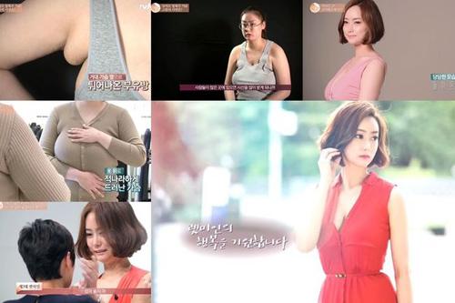 Cô gái Hàn hóa mỹ nhân sau khi giảm kích cỡ vòng 1 - 7