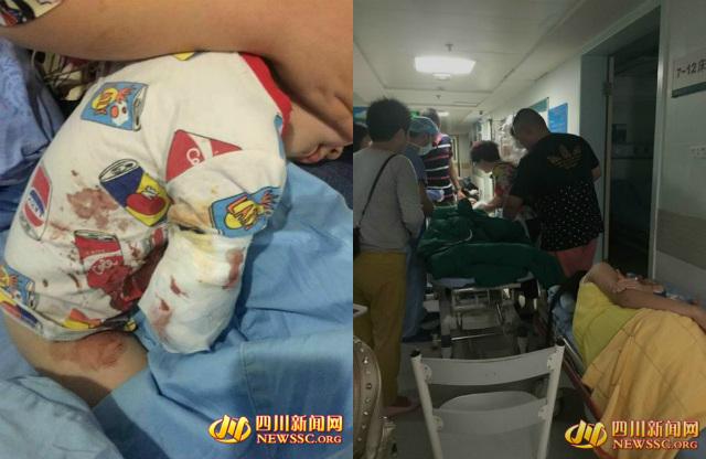 TQ: Thò tay vào chuồng hổ, bé 2 tuổi bị cắn đứt cánh tay - 1