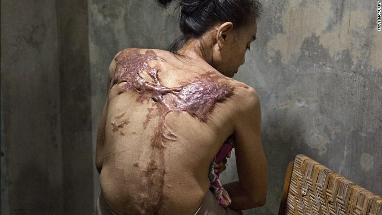 Nỗi đau của những ôsin châu Á bị chủ bạo hành dã man - 3
