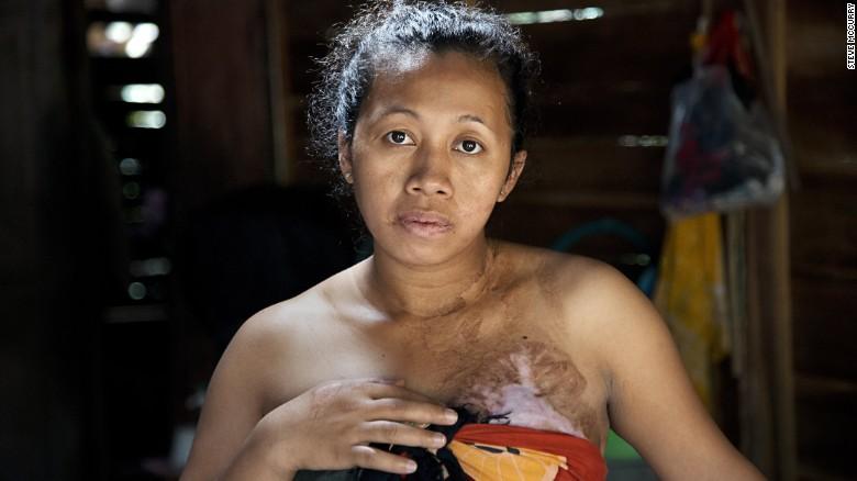 Nỗi đau của những ôsin châu Á bị chủ bạo hành dã man - 4