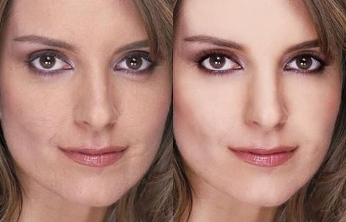 Mỹ nhân thế giới xinh đẹp hơn sau khi gọt cằm, thu eo - 6