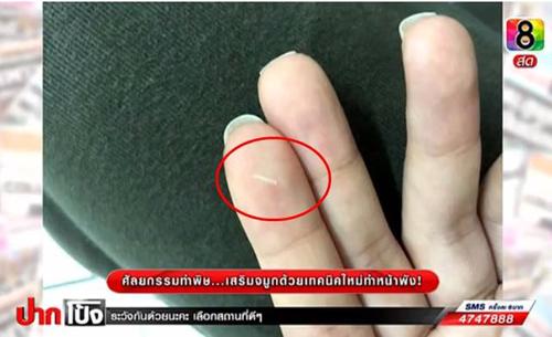 2 cô gái Thái lên truyền hình tố bác sĩ làm hỏng mũi - 3