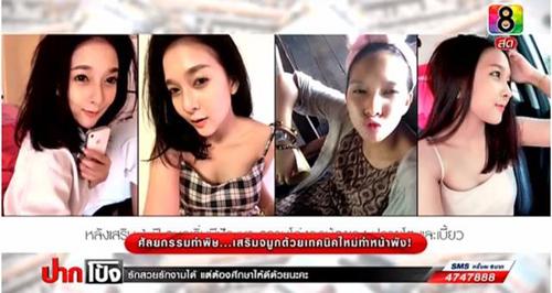 2 cô gái Thái lên truyền hình tố bác sĩ làm hỏng mũi - 4
