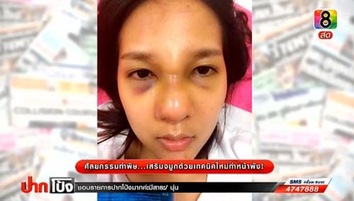 2 cô gái Thái lên truyền hình tố bác sĩ làm hỏng mũi - 6