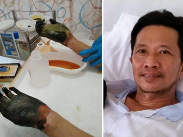 Kinh hãi, người đàn ông bị hoại tử tay chân vì ngộ độc thực phẩm